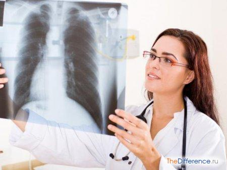 отличие флюорографии от рентгена