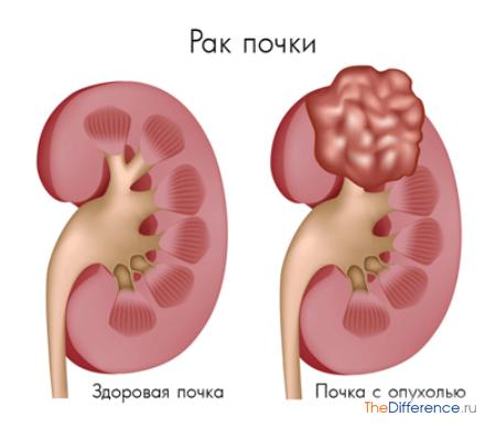 отличие между кистой и опухолью