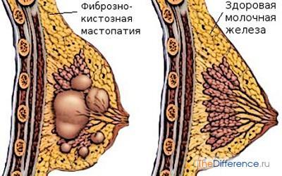 Как лечить мастопатию