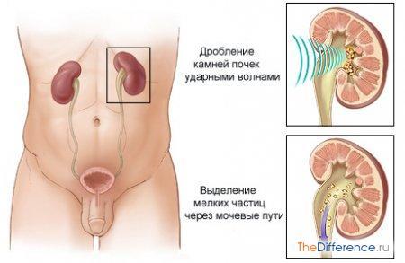 pielonefrit-5