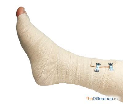 лечить тромбофлебит нижних конечностей