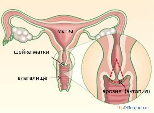 Как лечить эрозию шейки матки