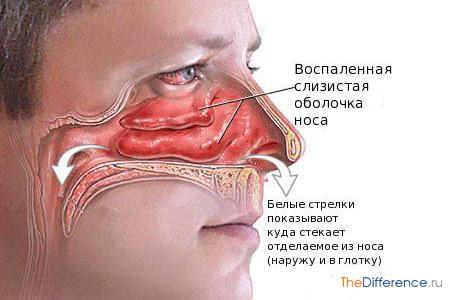 Лечение рака щитовидной железы народным средством