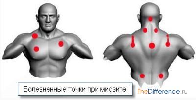 Как лечить застуженную спину