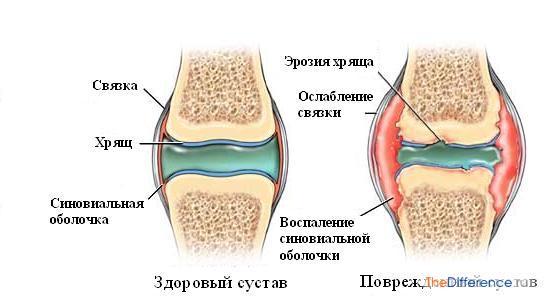 Как вылечить артрит