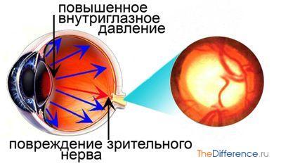 лечить глаукому народными средствами