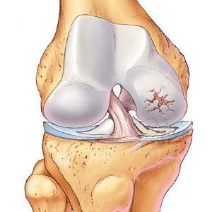 почему болят суставы в коленях