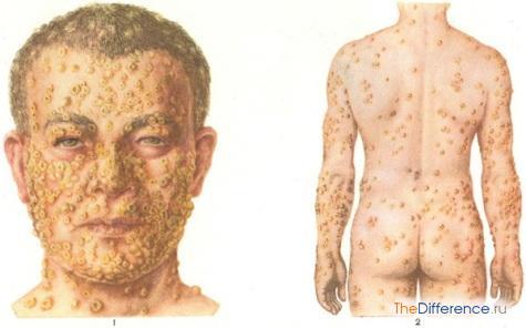 variola-vera