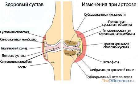 почему суставы болят