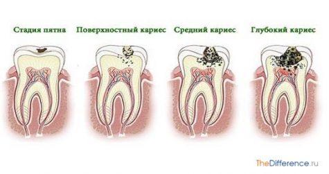 Чем пульпит отличается от кариеса разница между двумя заболеваниями и их особенности