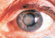 Разница между катарактой и глаукомой