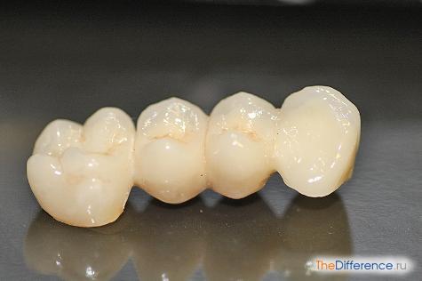 Чем отличается металлокерамика от керамики зубы