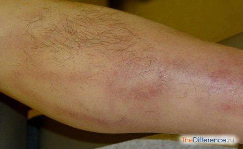 отличие варикоза от тромбофлебита
