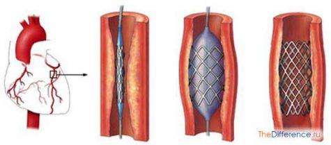 Шунтирование и стентирование в чем разница. Шунтирование или стентирование сосудов сердца. Шунтирование и стентирование сосудов сердца